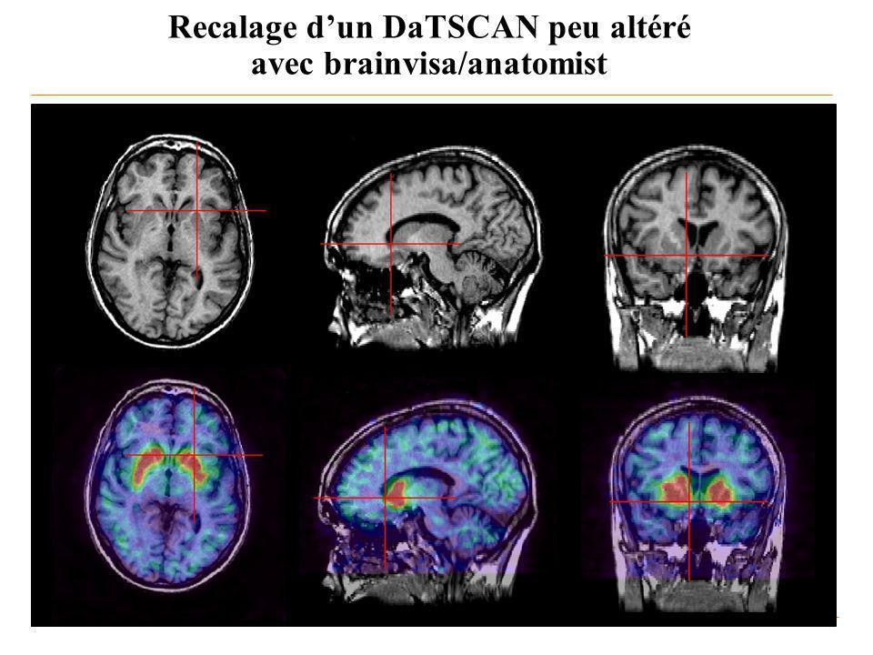 Recalage d'un DaTSCAN peu altéré avec brainvisa/anatomist