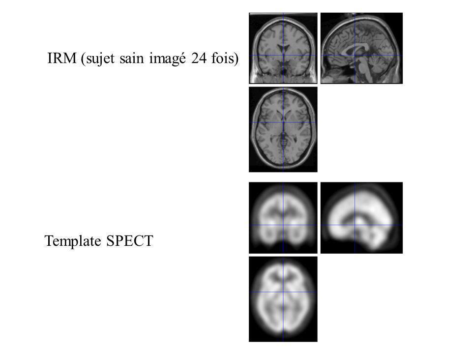 IRM (sujet sain imagé 24 fois)