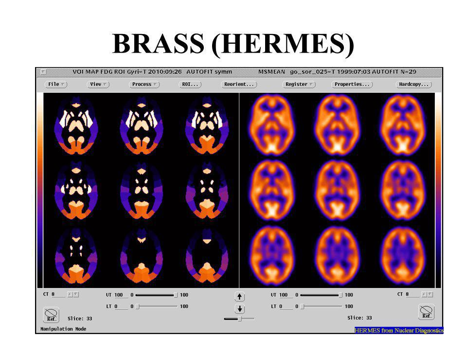 BRASS (HERMES)