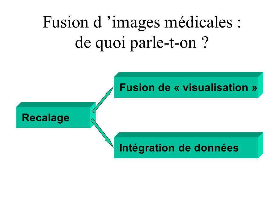 Fusion d 'images médicales : de quoi parle-t-on