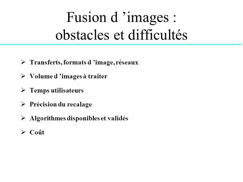Fusion d 'images : obstacles et difficultés