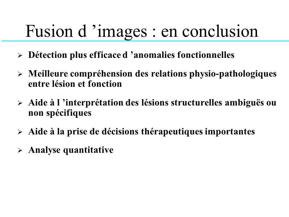 Fusion d 'images : en conclusion