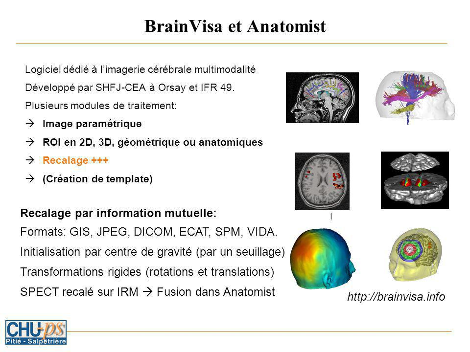 BrainVisa et Anatomist