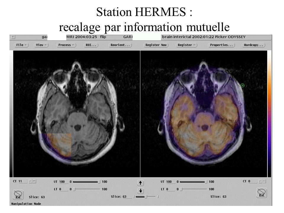 Station HERMES : recalage par information mutuelle