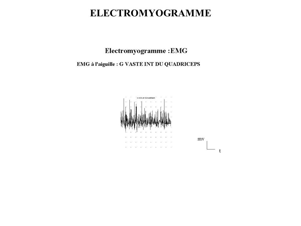 ELECTROMYOGRAMME