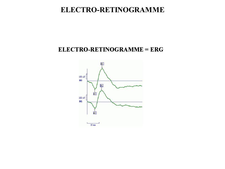 ELECTRO-RETINOGRAMME