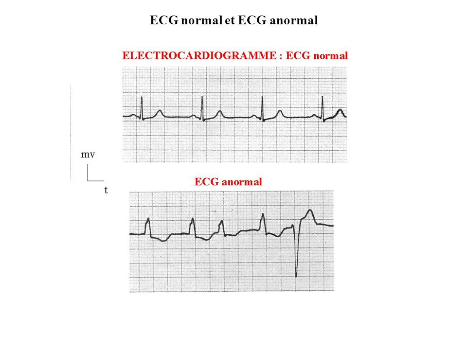 ECG normal et ECG anormal