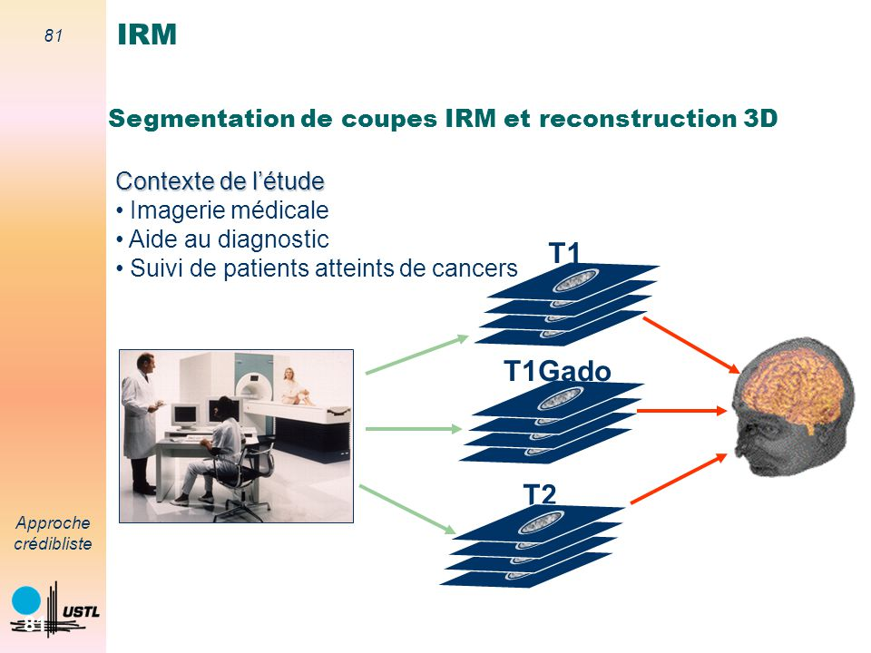 IRM T1 T1Gado T2 Segmentation de coupes IRM et reconstruction 3D