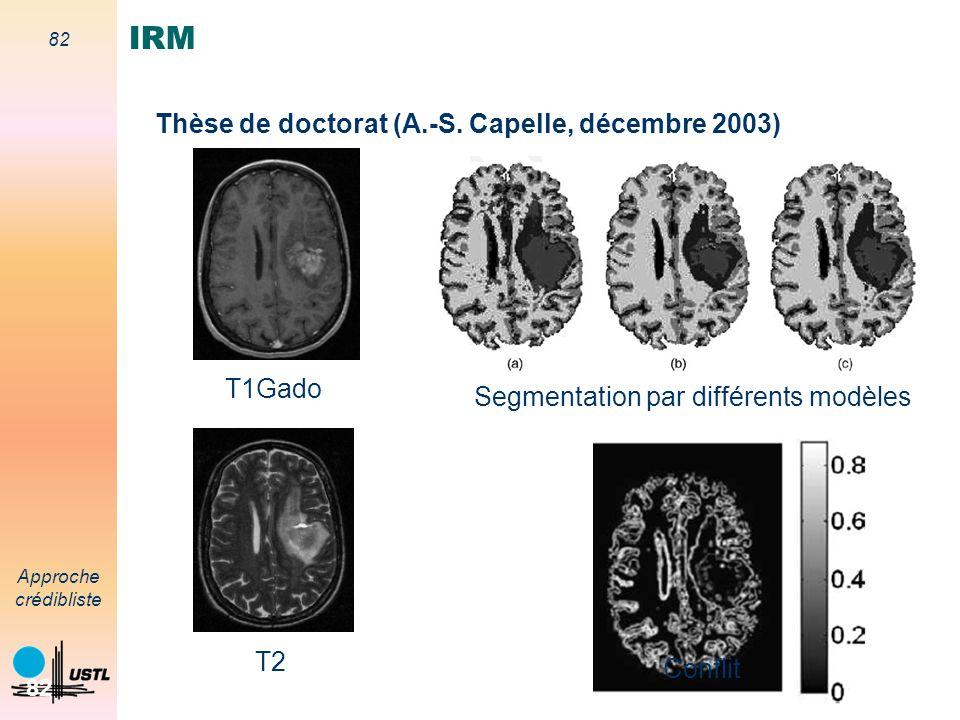 IRM Thèse de doctorat (A.-S. Capelle, décembre 2003) T1Gado