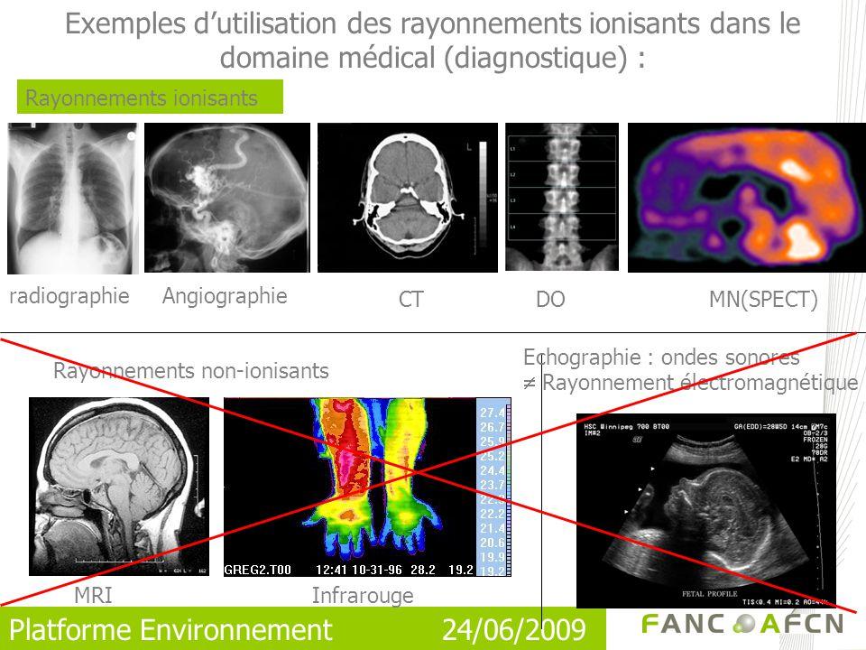 Exemples d'utilisation des rayonnements ionisants dans le domaine médical (diagnostique) :
