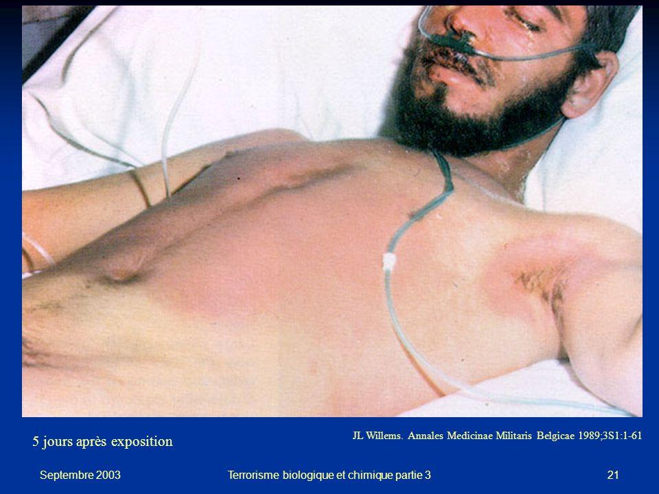 Terrorisme biologique et chimique partie 3