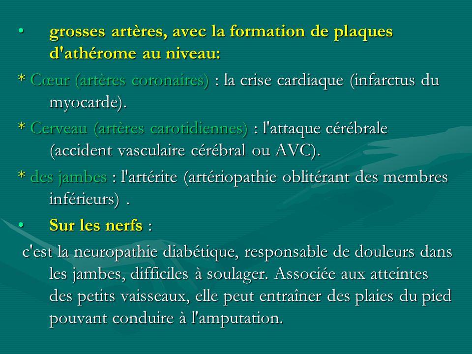 grosses artères, avec la formation de plaques d athérome au niveau: