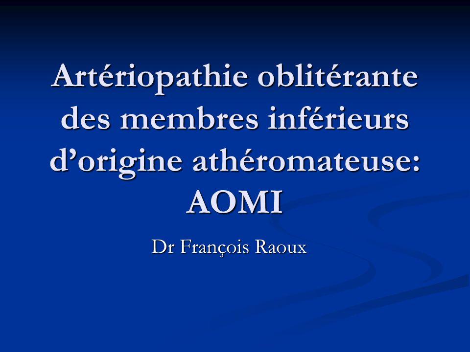Artériopathie oblitérante des membres inférieurs d'origine athéromateuse: AOMI
