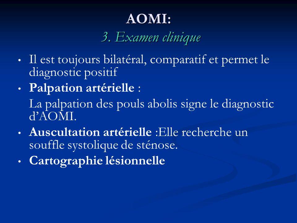 AOMI: 3. Examen clinique Il est toujours bilatéral, comparatif et permet le diagnostic positif. Palpation artérielle :