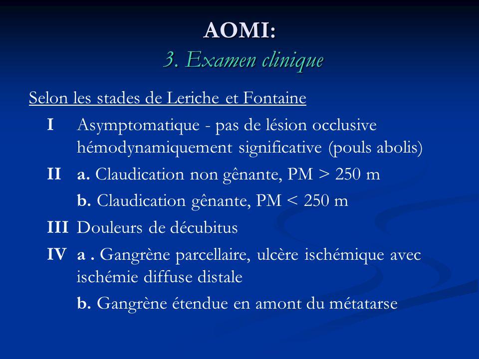 AOMI: 3. Examen clinique Selon les stades de Leriche et Fontaine