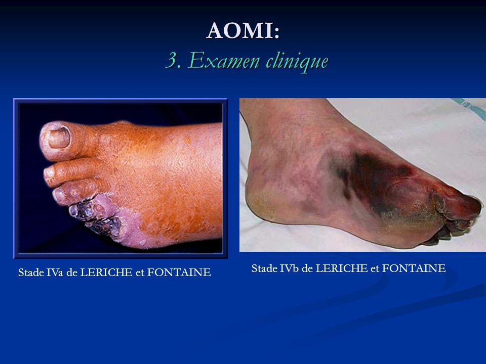 AOMI: 3. Examen clinique Stade IVb de LERICHE et FONTAINE