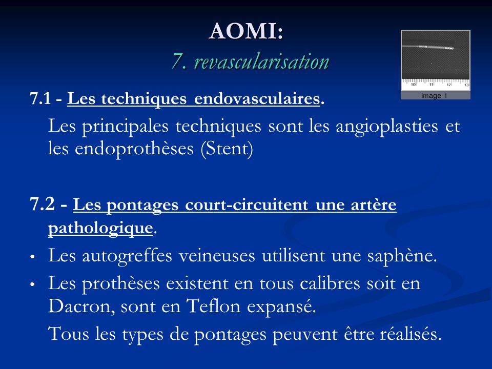 AOMI: 7. revascularisation