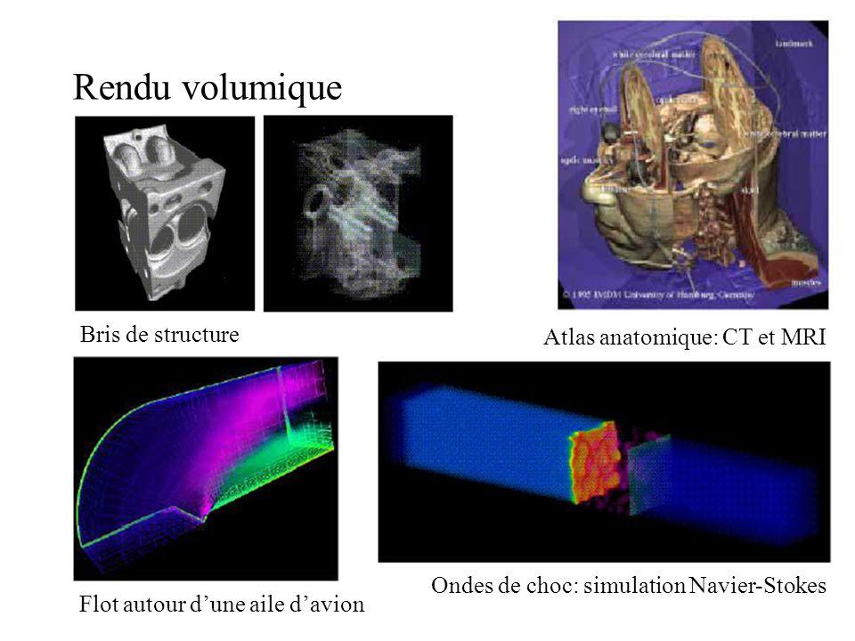 Rendu volumique Bris de structure Atlas anatomique: CT et MRI