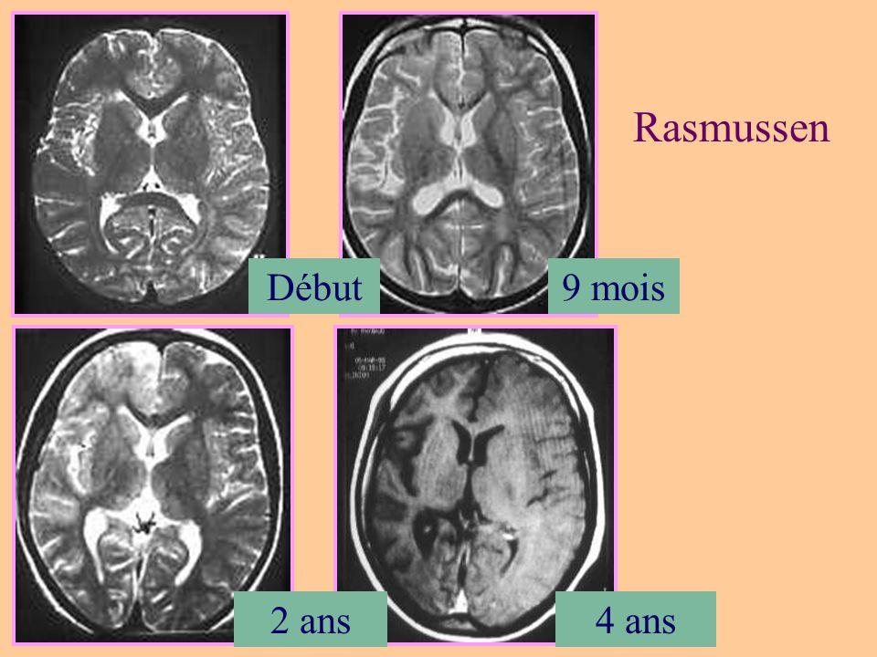 Rasmussen Début 9 mois 2 ans 4 ans