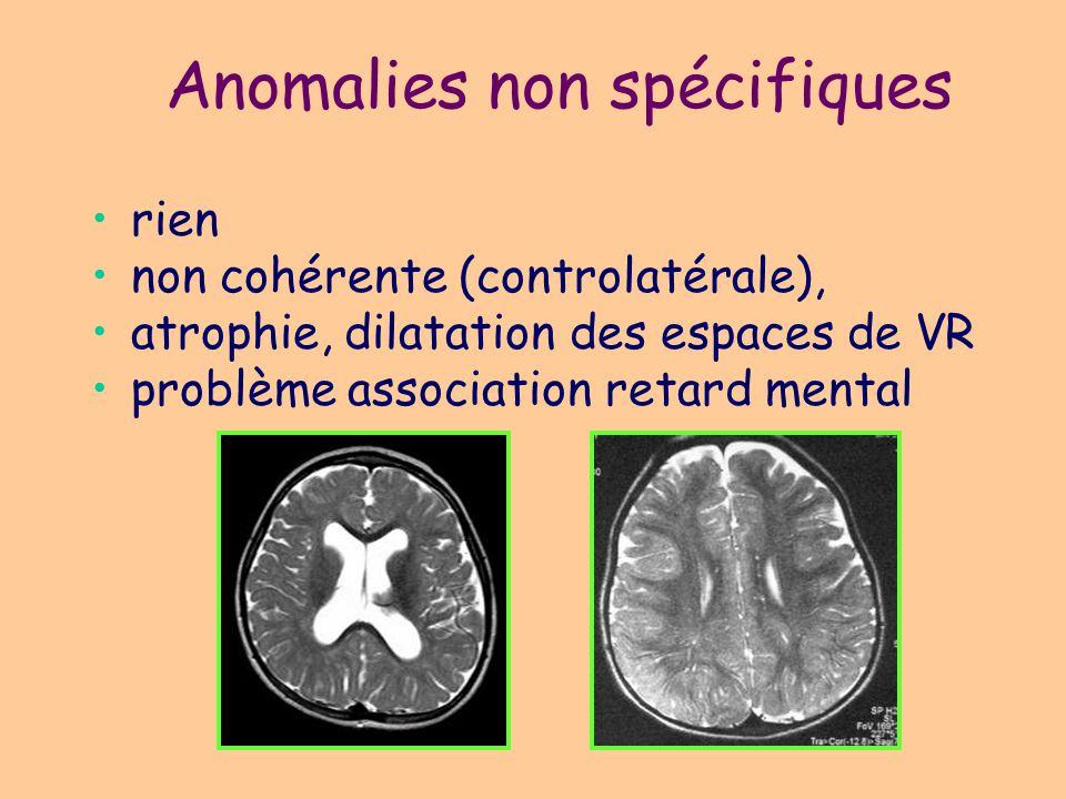 Anomalies non spécifiques