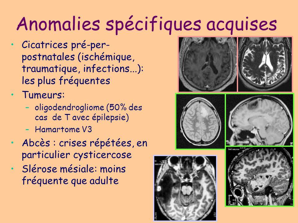 Anomalies spécifiques acquises