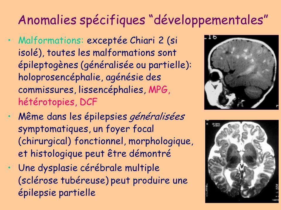 Anomalies spécifiques développementales