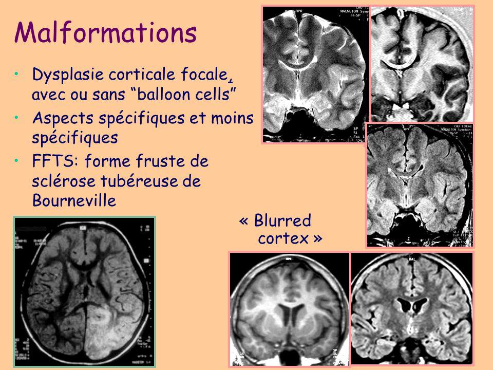 Malformations Dysplasie corticale focale, avec ou sans balloon cells
