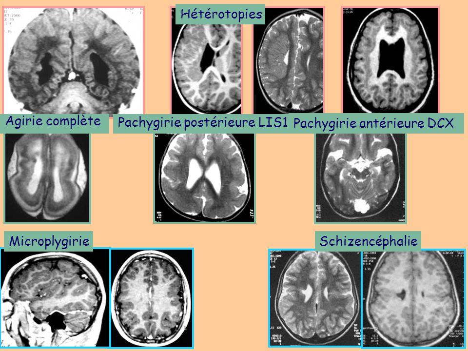 Hétérotopies Agirie complète. Pachygirie postérieure LIS1. Pachygirie antérieure DCX. Microplygirie.