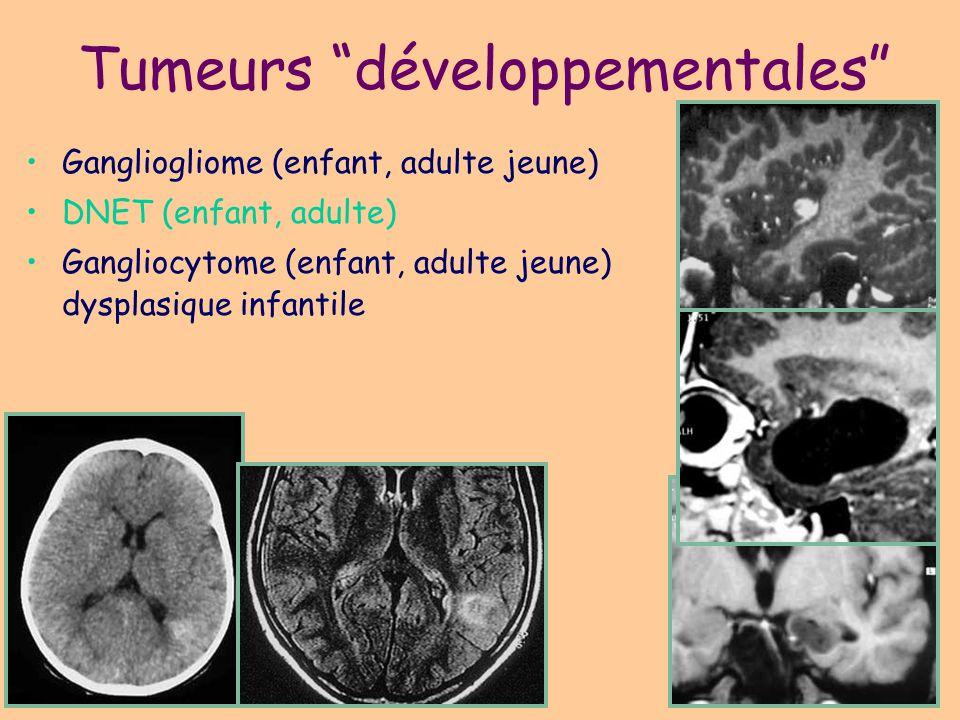 Tumeurs développementales
