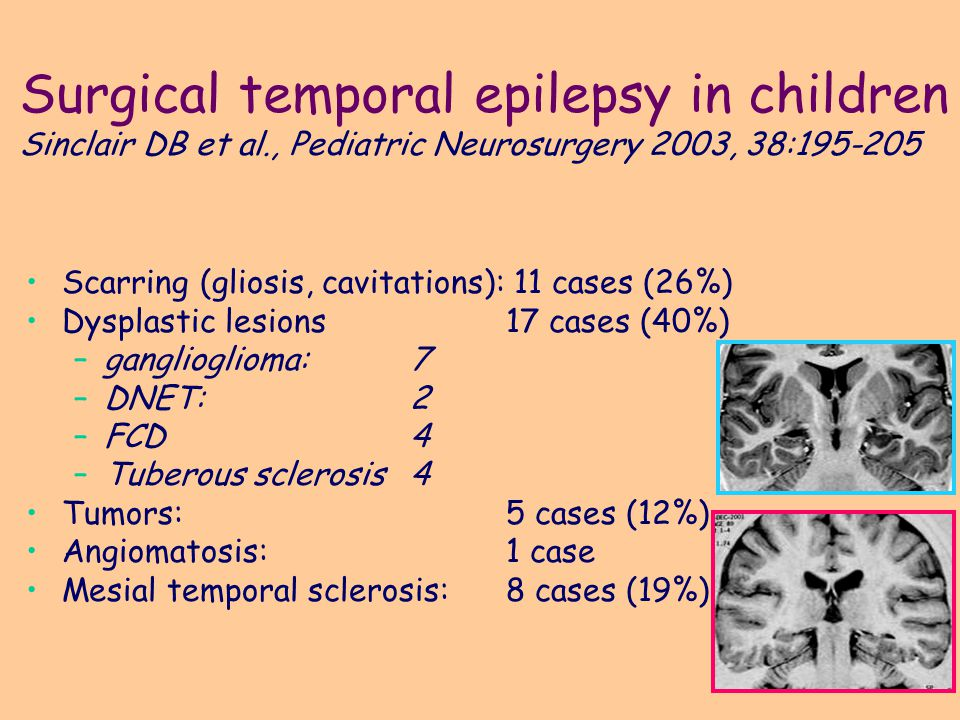 Surgical temporal epilepsy in children Sinclair DB et al