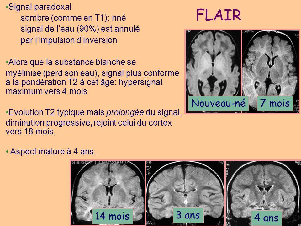 FLAIR 7 mois Nouveau-né 14 mois 3 ans 4 ans Signal paradoxal