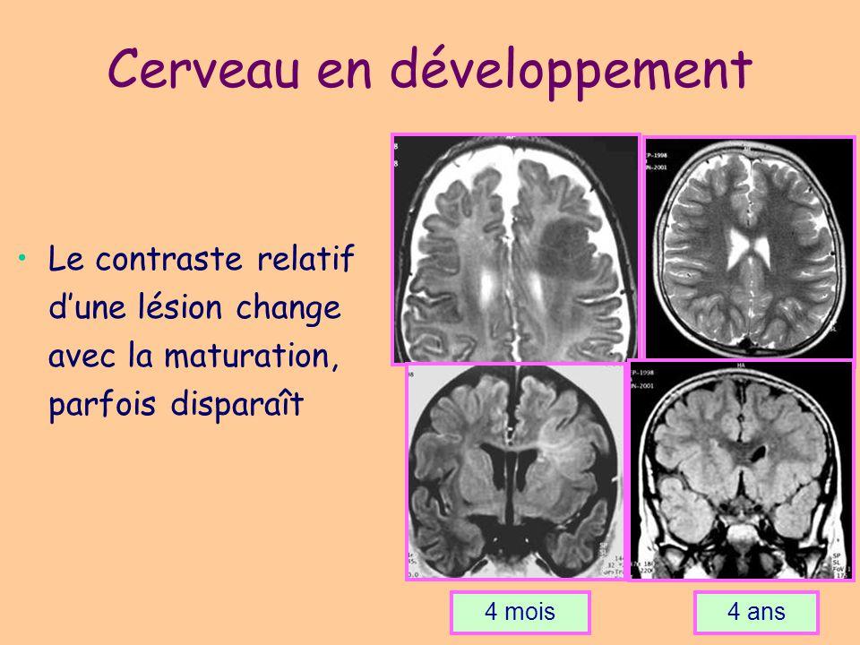 Cerveau en développement