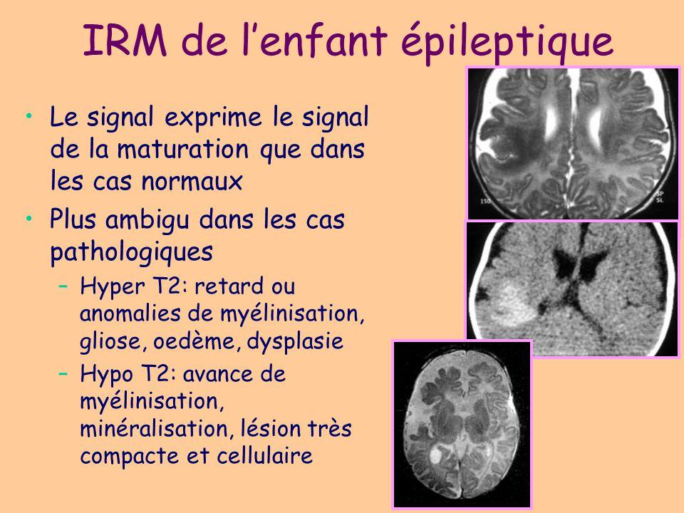 IRM de l'enfant épileptique