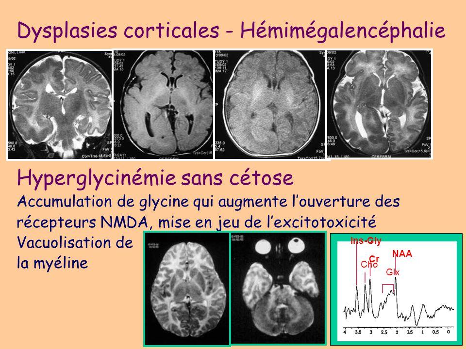 Dysplasies corticales - Hémimégalencéphalie