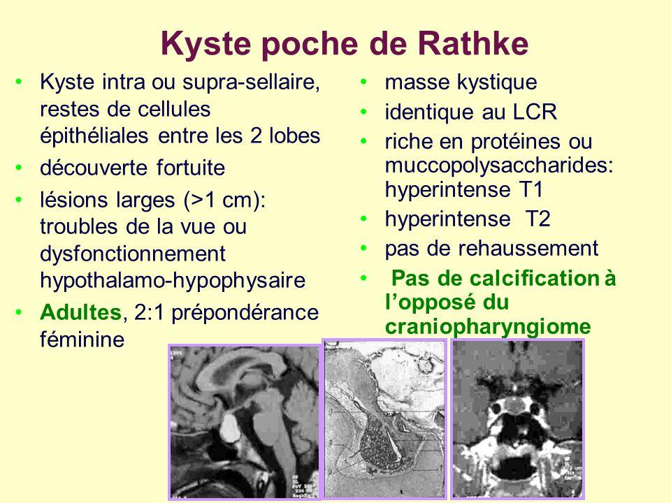 Kyste poche de Rathke Kyste intra ou supra-sellaire, restes de cellules épithéliales entre les 2 lobes.
