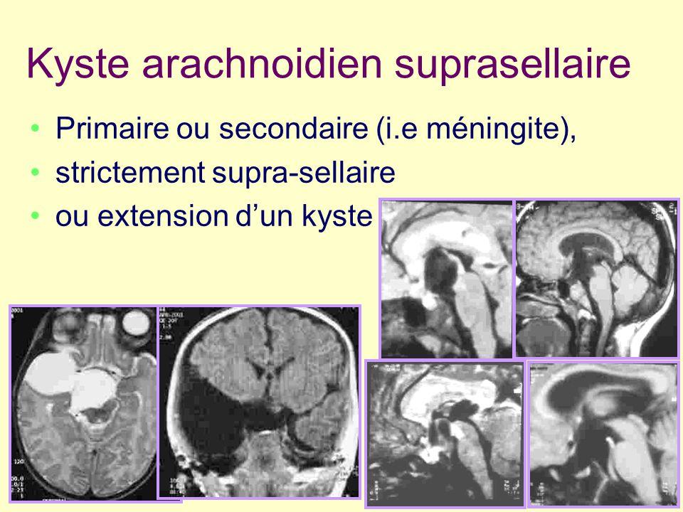 Kyste arachnoidien suprasellaire