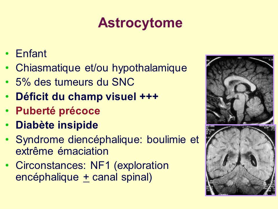 Astrocytome Enfant Chiasmatique et/ou hypothalamique
