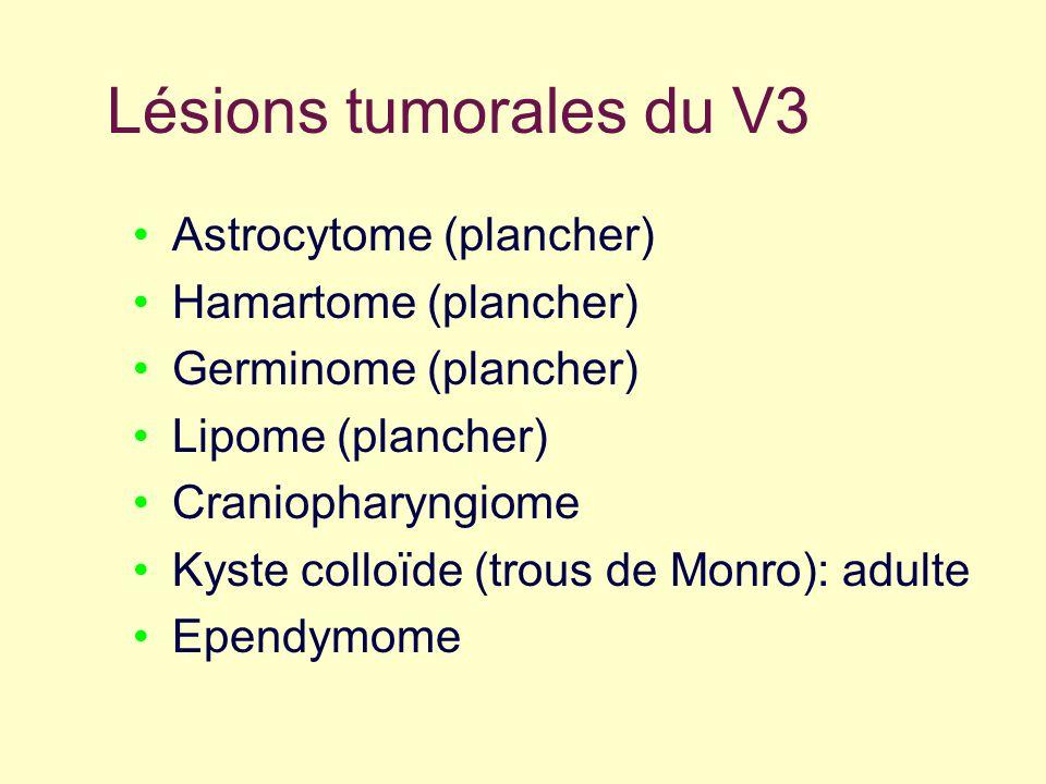 Lésions tumorales du V3 Astrocytome (plancher) Hamartome (plancher)