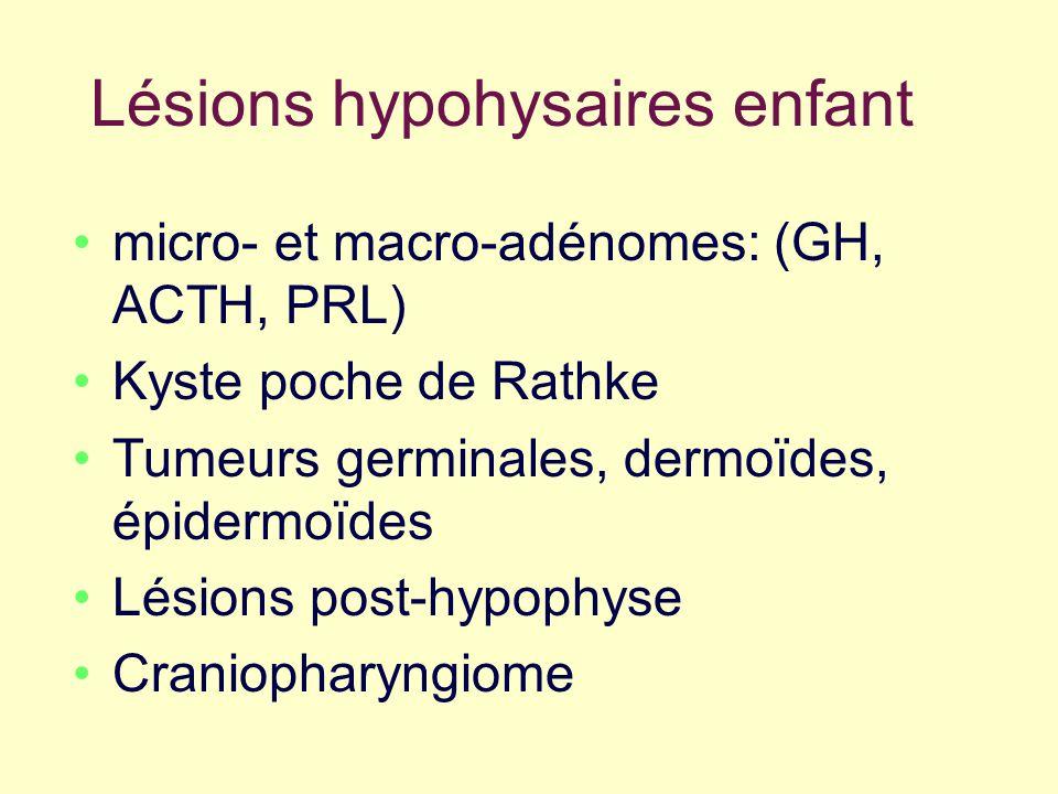 Lésions hypohysaires enfant