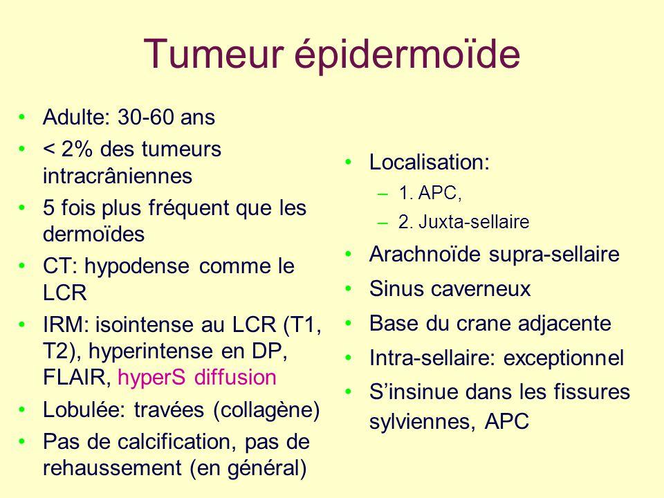 Tumeur épidermoïde Adulte: 30-60 ans