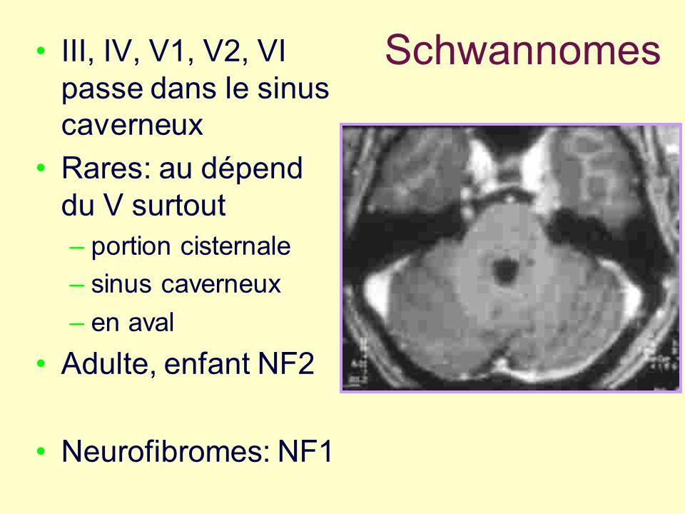 Schwannomes III, IV, V1, V2, VI passe dans le sinus caverneux