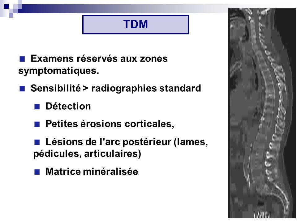 TDM Examens réservés aux zones symptomatiques.