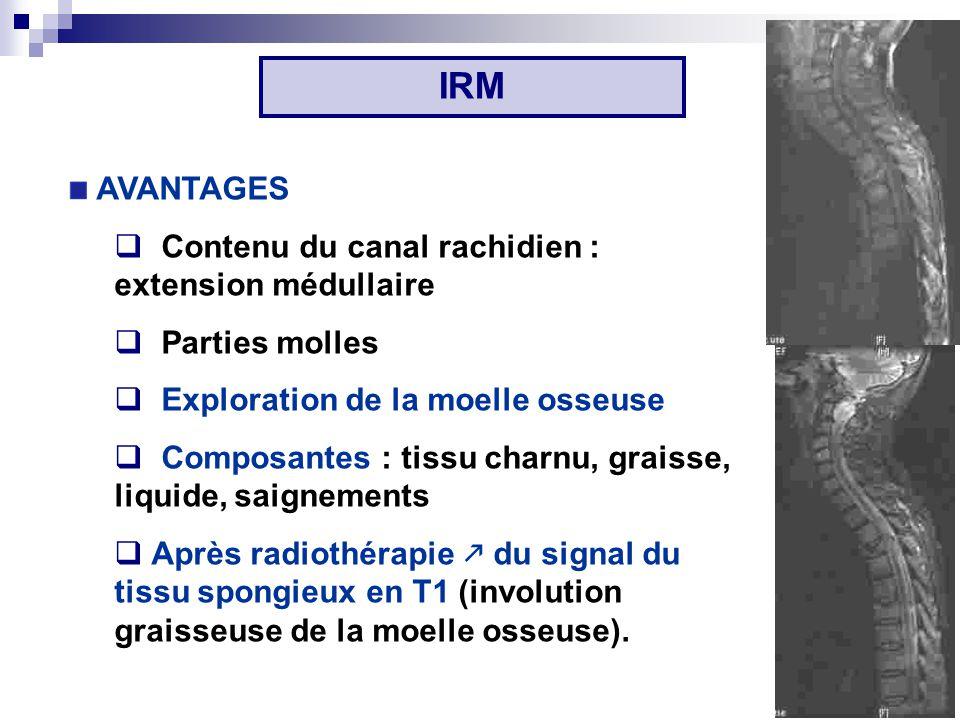 IRM AVANTAGES Contenu du canal rachidien : extension médullaire