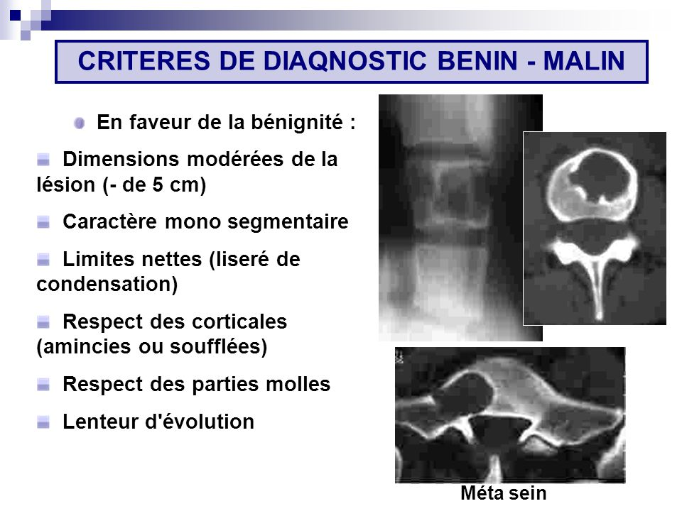 CRITERES DE DIAQNOSTIC BENIN - MALIN