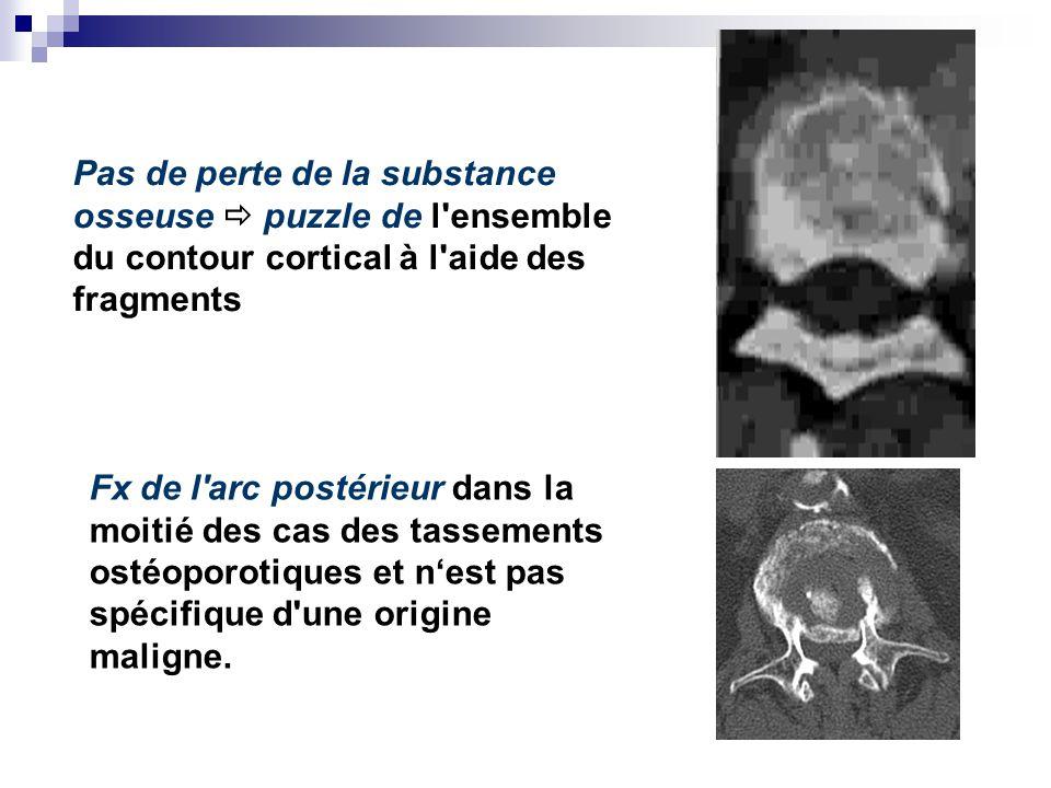 Pas de perte de la substance osseuse  puzzle de l ensemble du contour cortical à l aide des fragments
