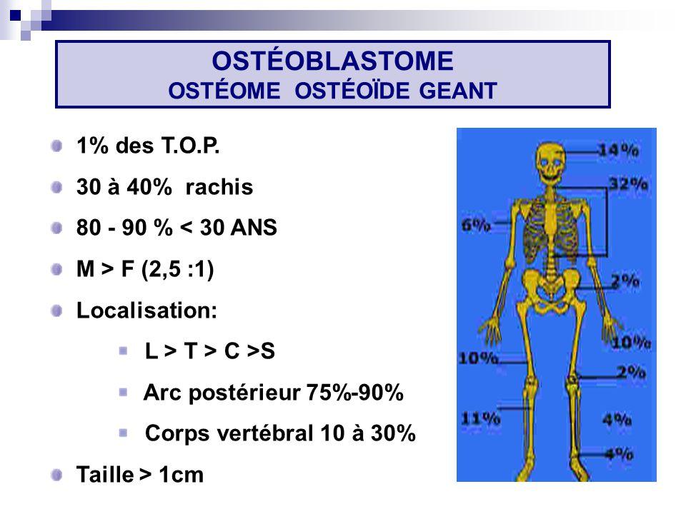 OSTÉOBLASTOME OSTÉOME OSTÉOÏDE GEANT
