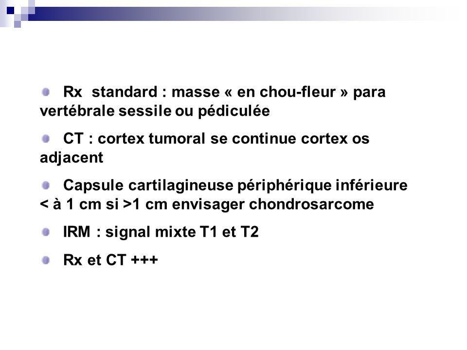 Rx standard : masse « en chou-fleur » para vertébrale sessile ou pédiculée