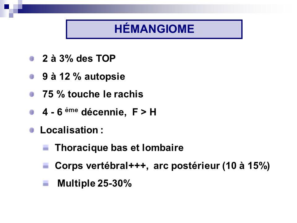 HÉMANGIOME 2 à 3% des TOP 9 à 12 % autopsie 75 % touche le rachis