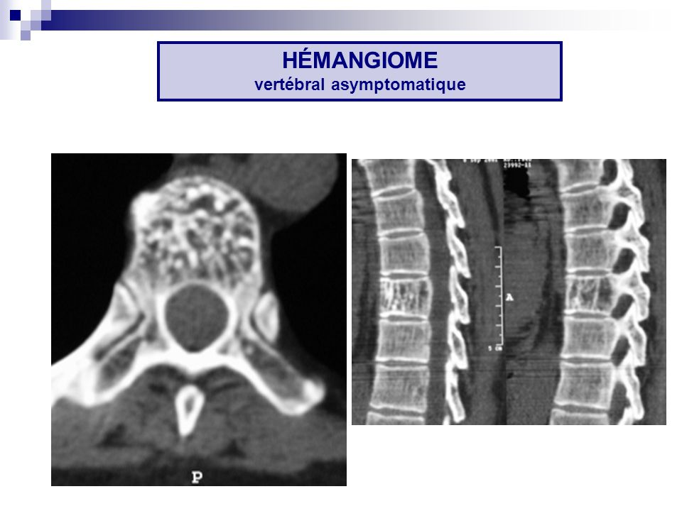 HÉMANGIOME vertébral asymptomatique