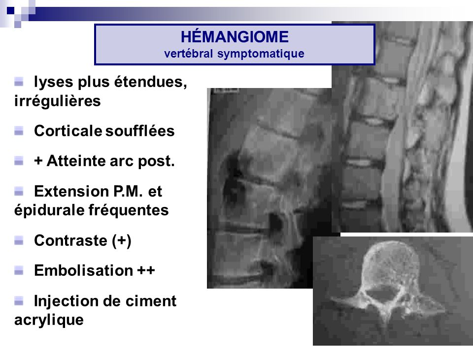 HÉMANGIOME vertébral symptomatique
